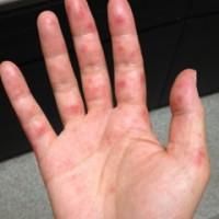 大人の手足口病症状画像