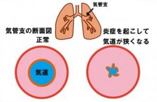喘息の気道断面図