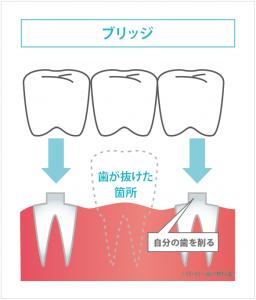 (画像)ブリッジ(歯)