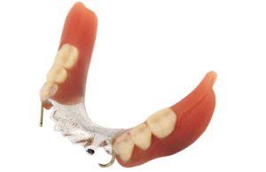 (画像)金属床(コバルト)の入れ歯