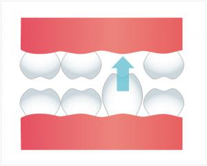 図:抜けた歯と噛み合わせる歯が延びる(挺出)
