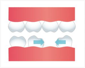 図:抜けた歯の横の歯が傾く(傾斜)