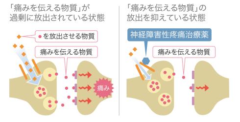 神経障害性疼痛治療薬イメージ図