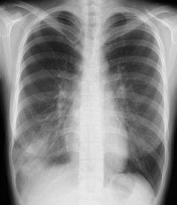 マイコプラズマ発症時の肺