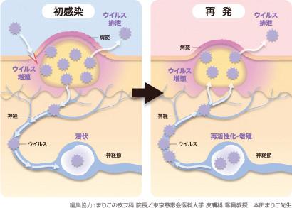ヘルペス初感染・再発イメージ
