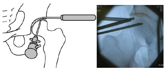 関節鏡手術説明