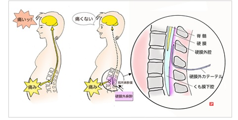 硬膜外鎮痛法