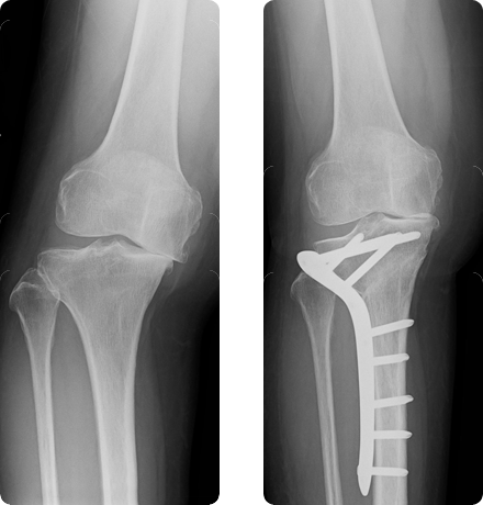 高位脛骨骨切り術②