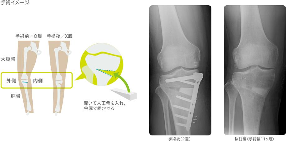 高位脛骨骨切り術①