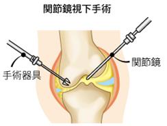 関節鏡可手術