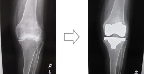 人工関節置換術(膝)