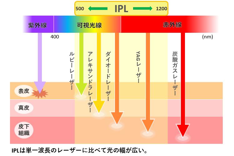 IPL波長