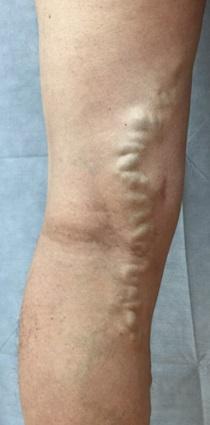 側枝型静脈瘤症例