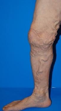伏在型静脈瘤2