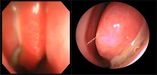 副鼻腔炎内視鏡画像