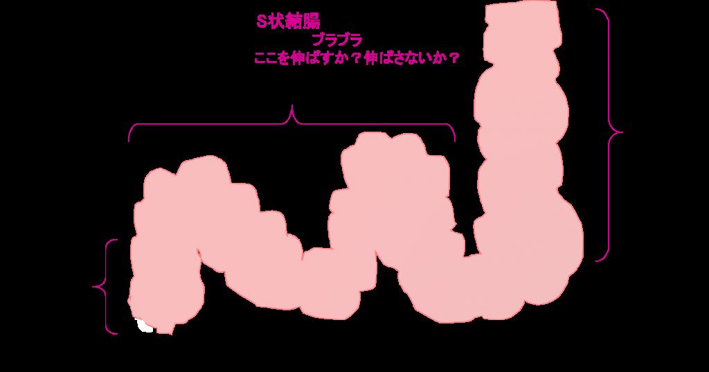 下行結腸_S状結腸_直腸イメージ図
