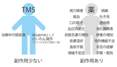 TMS副作用