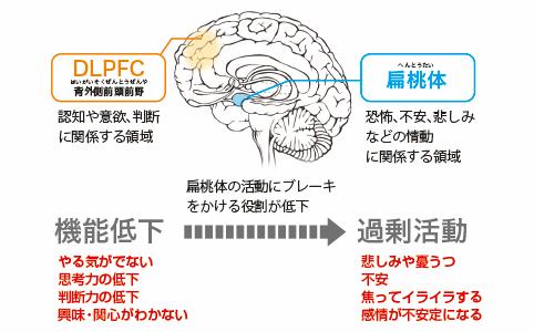 DLPFCイメージ