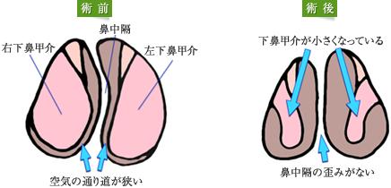 鼻中隔湾曲矯正術、粘膜下下鼻甲介骨切除術