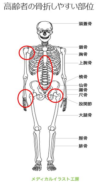高齢者の骨折部位