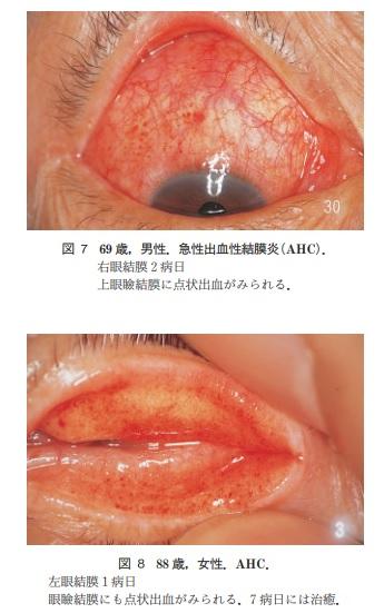 急性出血性結膜炎